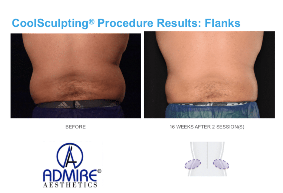 coolsculpting for men Love handles or flanks area in Medford, OR