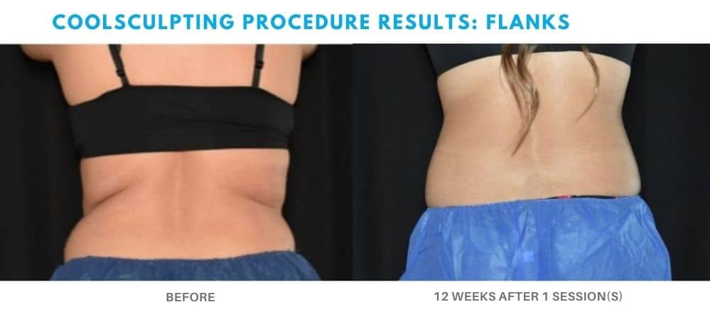 coolsculpting procedure flanks area real patient result at Admire Aesthetics